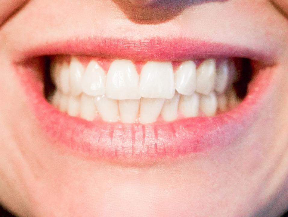 Eliminer les plaques dentaires